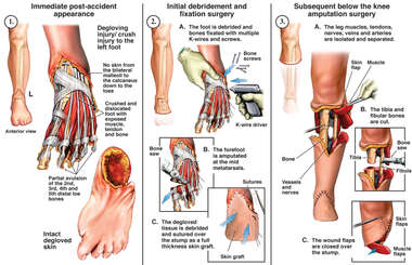 Degloving injury/ crush injury to the left foot
