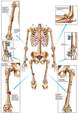 Skeletal Torso Orientation with Internal and External Fixation of the Arm, and Leg Bones Bilaterally