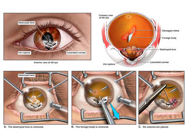 Removal of Foreign Body from Left Eye