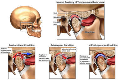 Degeneration of Temporomandibular Joint