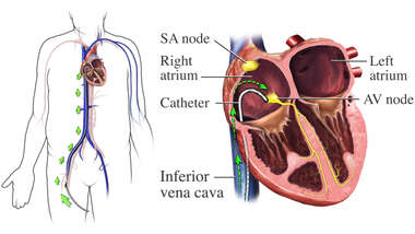 Catheter Placement
