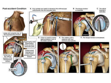 Right Shoulder Injuries with Arthroscopic Repair