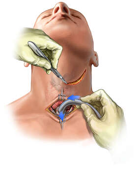 Insertion of Trach Tube