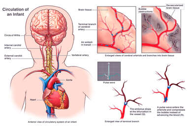 Multiple Air Emboli with Blockage of Blood Supply to an Infants Brain