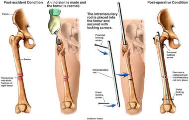 Post-accident Femur Fracture with Surgical Fusion