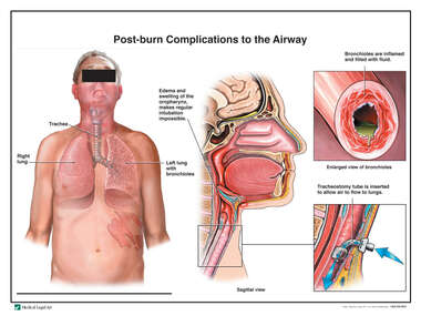 Post-burn Complications to the Airway