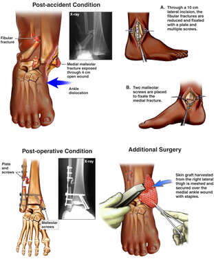 Bimalleolar Ankle Fractures with Surgical Repairs