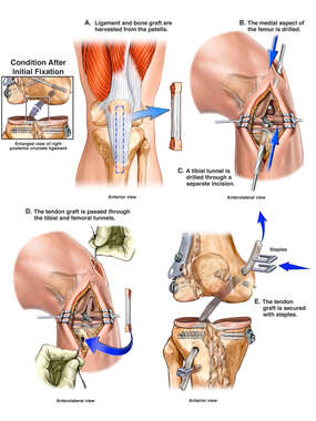 Proposed Left Knee Posterior Cruciate Ligament Replacement