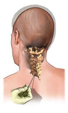 Epidural Injection - Cervical