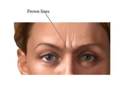 Frown Lines