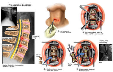 Cervical Disc Injuries with Double Level Surgical Discectomies and Fusion