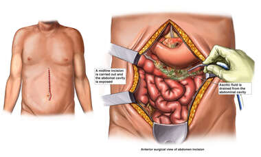 Surgical Laparotomy with Drainage of the Pancreas