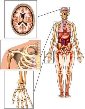 Female Figure with Brain Injury, Shoulder and Hand Bones
