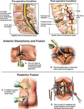 Lumbar Spine Injury and Surgical Fusion