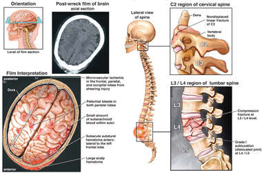 Brain Injuries with Spinal Fractures at C1 and L4