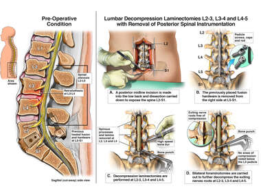 Lumbar Laminectomies and Hardware Removal