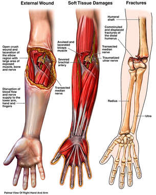 Superficial Skin, Deep Muscle and Fracture Injuries to the Right Arm