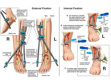 Bilateral Pilon Fractures with Surgical Fixation