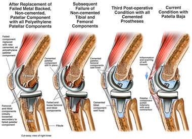 Failure of Non-cemented Tibial and Femoral Components