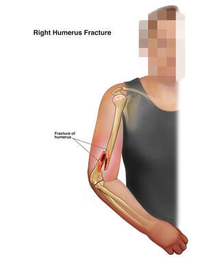 Right Humerus Fracture