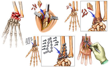 Wrist Fracture with Open Reduction                        and Internal Fixation Procedure