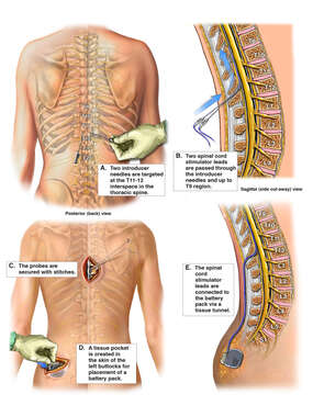 Insertion of Spinal Cord Stimulator