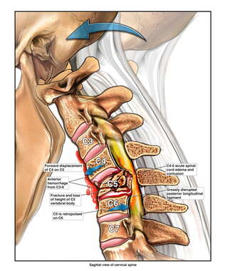 Acute Cervical Spine Injuries
