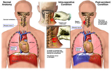 Intra-operative Phrenic Nerve Injury