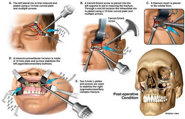 Open Reduction and Internal Fixation of the Skull Fractures