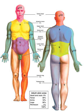 Rule of Nines for Body Areas