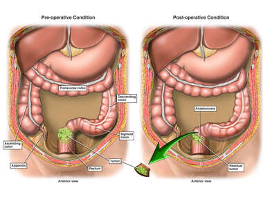 Rectal Cancer with Surgical Resection