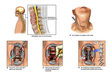 Cervical Disc Injuries with Triple Level Anterior Discectomy and Fusion Surgery