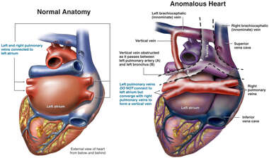Total Anomalous Pulmonary Return