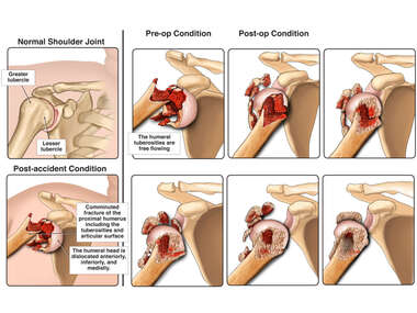 Progression of Condition of a Severely Dislocated Comminuted Proximal Humeral Fracture on the Right Shoulder