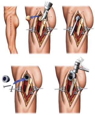Total Hip Joint Replacement Procedure