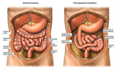 Subtotal Colectomy with Side-to-side Anastomosis