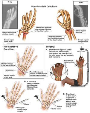 Bilateral Wrist Injuries and Arthroscopic Repairs of the Left Wrist