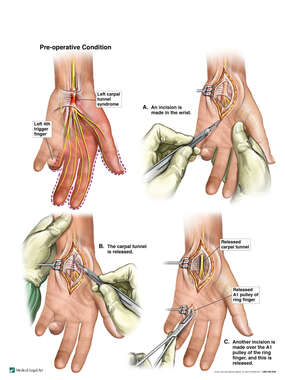 Left Carpal Tunnel Syndrome and Trigger Finger with Surgical Release