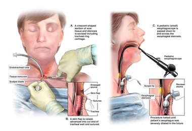 Revision of Laryngectomy Stoma Stenosis and Esophagoscopy