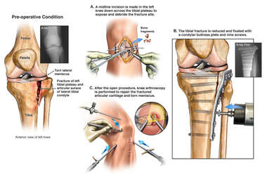 Left Tibial Plateau Fracture and Initial Surgical Repairs