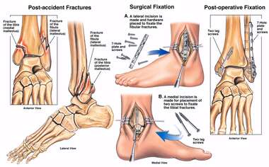 Left Tri-malleolar Ankle Fractures with Surgical Placement of Plates and Screws