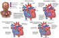 Correct vs. Incorrrect Repair of Congenital Heart Defects