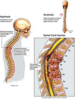 Traumatized Spinal Cord with Neurological Deficits