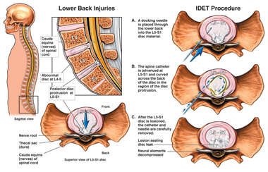 Lumbar Disc Injury with Intradiscal Electrothermal Therapy (IDET)