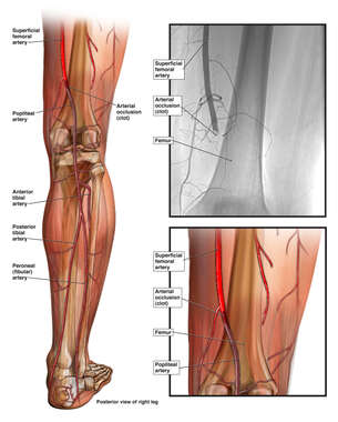 Arterial Occlusion (Right Leg)