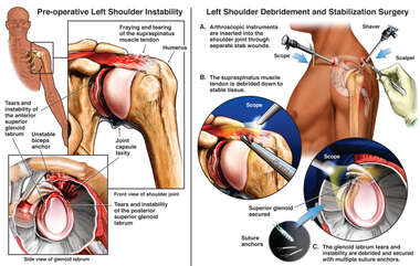 Left Shoulder Injuries with Arthroscopic Surgical Repairs