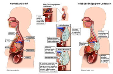 Mechanism of Esophageal Rupture