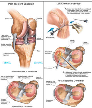 Post-accident Knee Injuries with Arthroscopic Repair of the Medial Meniscus