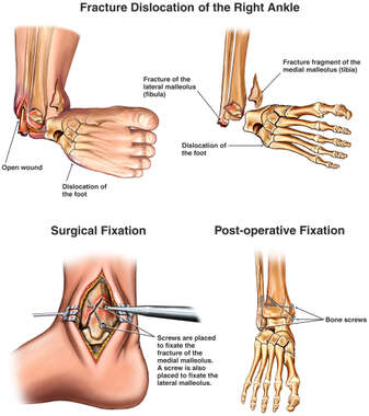 Traumatic Ankle Injuries with Surgical Fixation