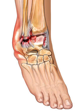 Anterolateral View of Ankle Ligament Injury